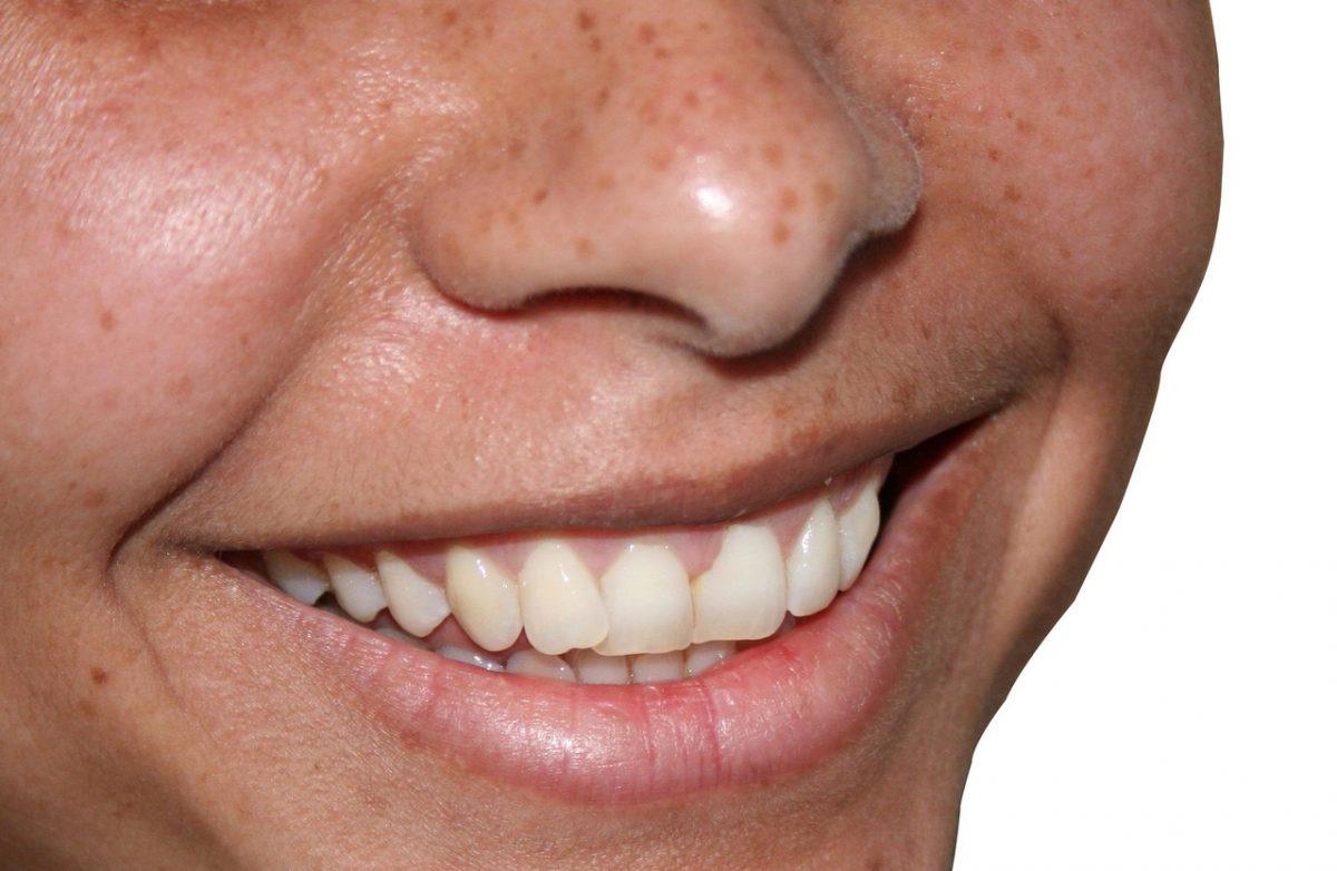 Piaskowanie zębów – skuteczne, czy niebezpieczne
